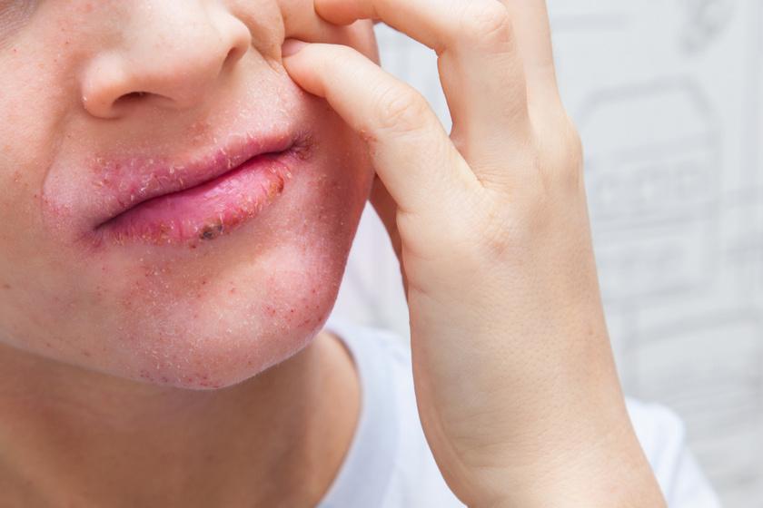 Pikkelysömör (pszoriázis, psoriasis) tünetei és kezelése Pikkelysömör az arcon kezelst okoz