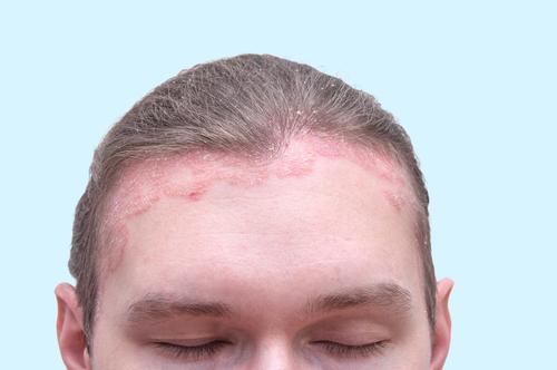 pikkelysmr a fejbrn kezelés népi gyógymódokkal