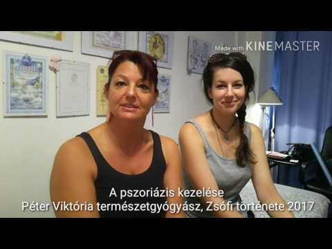 Kuklina Zoya Viktorovna társadalom psoriasisos betegek