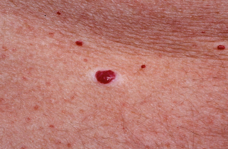 vörös folt, mint egy anyajegy az arcon a legújabb gyógyszerek pikkelysömör kezelésére