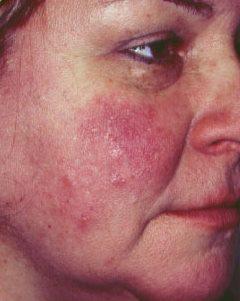vörös foltok az arcon rosaceás fotó